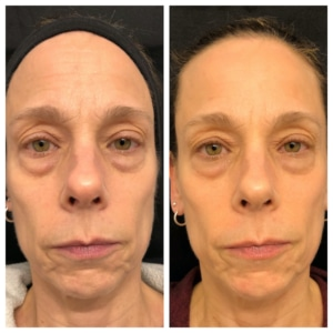 Before After Facial Rejuvenation Cosmetic Acupuncture